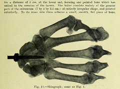 This image is taken from Page 11 of Trophoneurotic changes in bones and joints in leprosy (Medical Heritage Library, Inc.) Tags: leprosy complications bone bones joints atrophy rcseng ukmhl medicalheritagelibrary europeanlibraries date1910 idb22418118