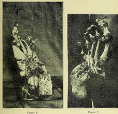 This image is taken from Page 7 of Trophoneurotic changes in bones and joints in leprosy (Medical Heritage Library, Inc.) Tags: leprosy complications bone bones joints atrophy rcseng ukmhl medicalheritagelibrary europeanlibraries date1910 idb22418118