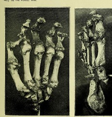 This image is taken from Page 5 of Trophoneurotic changes in bones and joints in leprosy (Medical Heritage Library, Inc.) Tags: leprosy complications bone bones joints atrophy rcseng ukmhl medicalheritagelibrary europeanlibraries date1910 idb22418118