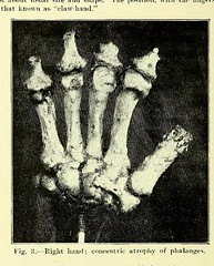 This image is taken from Page 4 of Trophoneurotic changes in bones and joints in leprosy (Medical Heritage Library, Inc.) Tags: leprosy complications bone bones joints atrophy rcseng ukmhl medicalheritagelibrary europeanlibraries date1910 idb22418118