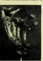 This image is taken from Page 3 of Trophoneurotic changes in bones and joints in leprosy (Medical Heritage Library, Inc.) Tags: leprosy complications bone bones joints atrophy rcseng ukmhl medicalheritagelibrary europeanlibraries date1910 idb22418118
