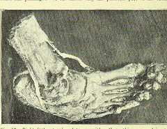 This image is taken from Page 10 of Trophoneurotic changes in bones and joints in leprosy (Medical Heritage Library, Inc.) Tags: leprosy complications bone bones joints atrophy rcseng ukmhl medicalheritagelibrary europeanlibraries date1910 idb22418118