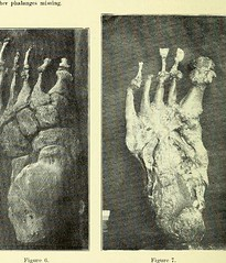 This image is taken from Page 6 of Trophoneurotic changes in bones and joints in leprosy (Medical Heritage Library, Inc.) Tags: leprosy complications bone bones joints atrophy rcseng ukmhl medicalheritagelibrary europeanlibraries date1910 idb22418118