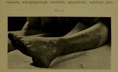 This image is taken from Page 3 of Gangrene of leg following diphtheria (Medical Heritage Library, Inc.) Tags: diphtheria complications rcseng ukmhl medicalheritagelibrary europeanlibraries date1910 idb2243348x