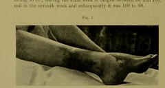 This image is taken from Page 2 of Gangrene of leg following diphtheria (Medical Heritage Library, Inc.) Tags: diphtheria complications rcseng ukmhl medicalheritagelibrary europeanlibraries date1910 idb2243348x