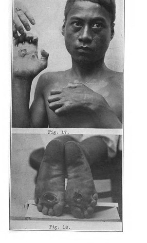 This image is taken from United States Naval Medical Bulletin Vol. 6, Nos. 1-4, 1912
