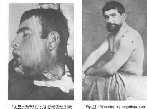 This image is taken from United States Naval Medical Bulletin Vol. 10 Nos. 1-4, 1916
