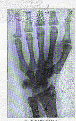 This image is taken from United States Naval Medical Bulletin Vol. 7, Nos. 1-4, 1913