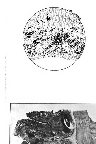 This image is taken from United States Naval Medical Bulletin Vol. 8, Nos. 1-4, 1914