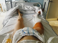...After Knee Repair (Stella Trasforini) Tags: me knee operation surgery hospital