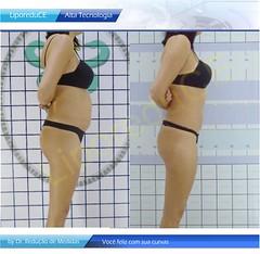 tratamento-plus-size-liporeduce-plussize-clinica-lipo-das-gordinhas-antes-depois-dieta-emagrecer-barriga-curvas-gorda-dr-reducao-de-medidas-estetica-padrao-beleza-curvas-metodo-original (a128