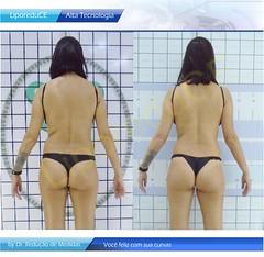 tratamento-plus-size-liporeduce-plussize-clinica-lipo-das-gordinhas-antes-depois-dieta-emagrecer-barriga-curvas-gorda-dr-reducao-de-medidas-estetica-padrao-beleza-curvas-metodo-original (a129