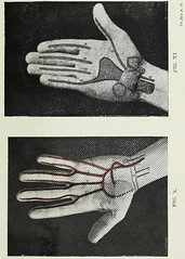This image is taken from Page 35 of Landmarks and surface markings of the human body (Medical Heritage Library, Inc.) Tags: anatomy regional surgical topographical wellcomelibrary ukmhl medicalheritagelibrary europeanlibraries date1912 idb28977956