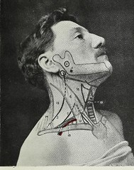 This image is taken from Page 17 of Landmarks and surface markings of the human body (Medical Heritage Library, Inc.) Tags: anatomy regional surgical topographical wellcomelibrary ukmhl medicalheritagelibrary europeanlibraries date1912 idb28977956