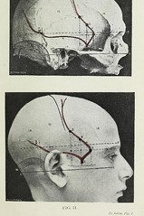 This image is taken from Page 11 of Landmarks and surface markings of the human body (Medical Heritage Library, Inc.) Tags: anatomy regional surgical topographical wellcomelibrary ukmhl medicalheritagelibrary europeanlibraries date1912 idb28977956