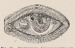This image is taken from Page 225 of Text-book of ophthalmology