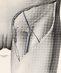 This image is taken from Page 93 of Topographische Anatomie dringlicher Operationen (Medical Heritage Library, Inc.) Tags: anatomy regional surgical procedures operative topographical wellcomelibrary ukmhl medicalheritagelibrary europeanlibraries date1916 idb29817869