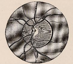 This image is taken from Page 96 of Text-book of ophthalmology