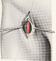 This image is taken from Page 43 of Topographische Anatomie dringlicher Operationen (Medical Heritage Library, Inc.) Tags: anatomy regional surgical procedures operative topographical wellcomelibrary ukmhl medicalheritagelibrary europeanlibraries date1916 idb29817869