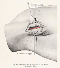 This image is taken from Page 37 of Topographische Anatomie dringlicher Operationen (Medical Heritage Library, Inc.) Tags: anatomy regional surgical procedures operative topographical wellcomelibrary ukmhl medicalheritagelibrary europeanlibraries date1916 idb29817869