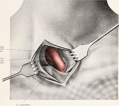 This image is taken from Page 23 of Topographische Anatomie dringlicher Operationen (Medical Heritage Library, Inc.) Tags: anatomy regional surgical procedures operative topographical wellcomelibrary ukmhl medicalheritagelibrary europeanlibraries date1916 idb29817869
