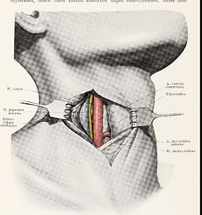This image is taken from Page 22 of Topographische Anatomie dringlicher Operationen (Medical Heritage Library, Inc.) Tags: anatomy regional surgical procedures operative topographical wellcomelibrary ukmhl medicalheritagelibrary europeanlibraries date1916 idb29817869