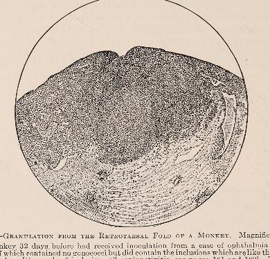 This image is taken from Page 166 of Text-book of ophthalmology