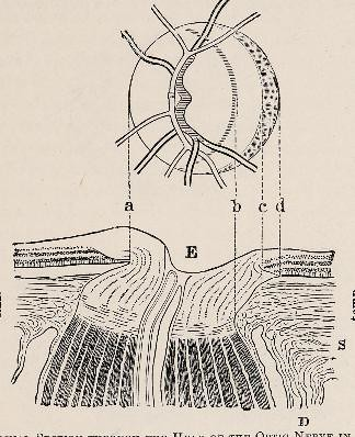 This image is taken from Page 97 of Text-book of ophthalmology