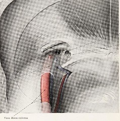 This image is taken from Page 90 of Topographische Anatomie dringlicher Operationen (Medical Heritage Library, Inc.) Tags: anatomy regional surgical procedures operative topographical wellcomelibrary ukmhl medicalheritagelibrary europeanlibraries date1916 idb29817869