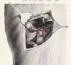 This image is taken from Page 67 of Topographische Anatomie dringlicher Operationen (Medical Heritage Library, Inc.) Tags: anatomy regional surgical procedures operative topographical wellcomelibrary ukmhl medicalheritagelibrary europeanlibraries date1916 idb29817869