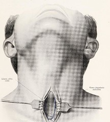 This image is taken from Page 55 of Topographische Anatomie dringlicher Operationen (Medical Heritage Library, Inc.) Tags: anatomy regional surgical procedures operative topographical wellcomelibrary ukmhl medicalheritagelibrary europeanlibraries date1916 idb29817869