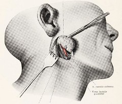 This image is taken from Page 18 of Topographische Anatomie dringlicher Operationen (Medical Heritage Library, Inc.) Tags: anatomy regional surgical procedures operative topographical wellcomelibrary ukmhl medicalheritagelibrary europeanlibraries date1916 idb29817869