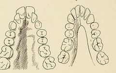 This image is taken from Page 22 of Stomatology in general practice : a textbook of diseases of the teeth and mouth for students and practitioners (Medical Heritage Library, Inc.) Tags: tooth diseases mouth wellcomelibrary ukmhl medicalheritagelibrary europeanlibraries date1912 idb28091097