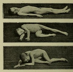 This image is taken from Page 336 of Sémiologie des affections du système nerveux (Medical Heritage Library, Inc.) Tags: nervous system diseases neurologic examination manifestations neuromuscular wellcomelibrary ukmhl medicalheritagelibrary europeanlibraries date1914 idb28117694