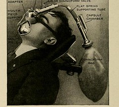 This image is taken from Page 192 of Lectures on general anaesthetics in dentistry : advocating painless dental operations by the use of nitrous oxid, nitrous oxid and oxygen, chloroform, ether, ethyl chloride and somnoform (Medical Heritage Library, Inc.) Tags: anesthesia general dental nitrous oxide columbialongmhl medicalheritagelibrary columbiauniversitylibraries americana date1912 idlecturesongenera1912defo