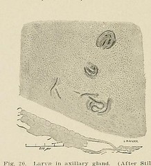 This image is taken from Page 82 of Hookworm disease; etiology, pathology, diagnosis, prognosis, prophylaxis, and treatment (Medical Heritage Library, Inc.) Tags: hookworm disease infections columbialongmhl medicalheritagelibrary columbiauniversitylibraries americana date1910 idhookwormdiseasee00dock