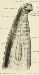 This image is taken from Page 61 of Hookworm disease; etiology, pathology, diagnosis, prognosis, prophylaxis, and treatment (Medical Heritage Library, Inc.) Tags: hookworm disease infections columbialongmhl medicalheritagelibrary columbiauniversitylibraries americana date1910 idhookwormdiseasee00dock