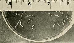 This image is taken from Page 59 of Hookworm disease; etiology, pathology, diagnosis, prognosis, prophylaxis, and treatment (Medical Heritage Library, Inc.) Tags: hookworm disease infections columbialongmhl medicalheritagelibrary columbiauniversitylibraries americana date1910 idhookwormdiseasee00dock