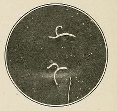 This image is taken from Page 58 of Hookworm disease; etiology, pathology, diagnosis, prognosis, prophylaxis, and treatment (Medical Heritage Library, Inc.) Tags: hookworm disease infections columbialongmhl medicalheritagelibrary columbiauniversitylibraries americana date1910 idhookwormdiseasee00dock