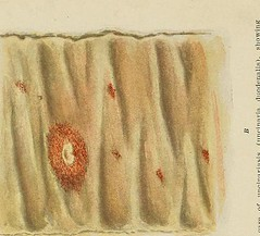 This image is taken from Hookworm disease; etiology, pathology, diagnosis, prognosis, prophylaxis, and treatment (Medical Heritage Library, Inc.) Tags: hookworm disease infections columbialongmhl medicalheritagelibrary columbiauniversitylibraries americana date1910 idhookwormdiseasee00dock