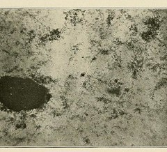 This image is taken from Page 175 of Hookworm disease; etiology, pathology, diagnosis, prognosis, prophylaxis, and treatment (Medical Heritage Library, Inc.) Tags: hookworm disease infections columbialongmhl medicalheritagelibrary columbiauniversitylibraries americana date1910 idhookwormdiseasee00dock