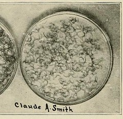 This image is taken from Page 80 of Hookworm disease; etiology, pathology, diagnosis, prognosis, prophylaxis, and treatment (Medical Heritage Library, Inc.) Tags: hookworm disease infections columbialongmhl medicalheritagelibrary columbiauniversitylibraries americana date1910 idhookwormdiseasee00dock