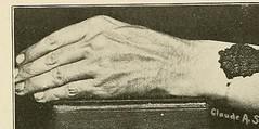 This image is taken from Page 77 of Hookworm disease; etiology, pathology, diagnosis, prognosis, prophylaxis, and treatment (Medical Heritage Library, Inc.) Tags: hookworm disease infections columbialongmhl medicalheritagelibrary columbiauniversitylibraries americana date1910 idhookwormdiseasee00dock