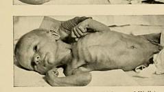 This image is taken from Infant feeding (Medical Heritage Library, Inc.) Tags: infants infant food feeding behavior columbialongmhl medicalheritagelibrary columbiauniversitylibraries americana date1914 idinfantfeeding00grul