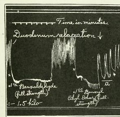 This image is taken from Page 587 of The Journal of laboratory and clinical medicine, 07 (Medical Heritage Library, Inc.) Tags: biological assay diagnosis laboratory disease medicine research gerstein toronto medicalheritagelibrary date1915 idjournaloflaborat07cent