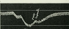 This image is taken from Page 470 of The Journal of laboratory and clinical medicine, 07 (Medical Heritage Library, Inc.) Tags: biological assay diagnosis laboratory disease medicine research gerstein toronto medicalheritagelibrary date1915 idjournaloflaborat07cent
