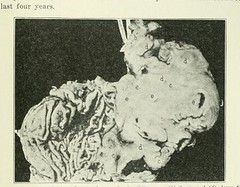 This image is taken from Page 183 of The Journal of laboratory and clinical medicine, 08 (Medical Heritage Library, Inc.) Tags: biological assay diagnosis laboratory disease medicine research gerstein toronto medicalheritagelibrary date1915 idjournaloflaborat08cent