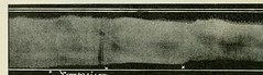 This image is taken from Page 30 of The Journal of laboratory and clinical medicine, 08 (Medical Heritage Library, Inc.) Tags: biological assay diagnosis laboratory disease medicine research gerstein toronto medicalheritagelibrary date1915 idjournaloflaborat08cent