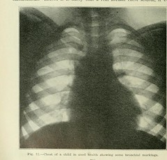 This image is taken from Page 790 of The Journal of laboratory and clinical medicine, 08 (Medical Heritage Library, Inc.) Tags: biological assay diagnosis laboratory disease medicine research gerstein toronto medicalheritagelibrary date1915 idjournaloflaborat08cent