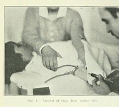 This image is taken from Page 431 of The Journal of laboratory and clinical medicine, 08 (Medical Heritage Library, Inc.) Tags: biological assay diagnosis laboratory disease medicine research gerstein toronto medicalheritagelibrary date1915 idjournaloflaborat08cent